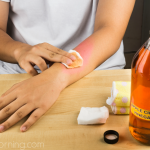 16 Incredible Uses That Prove Apple Cider Vinegar Is The Best Home Remedy