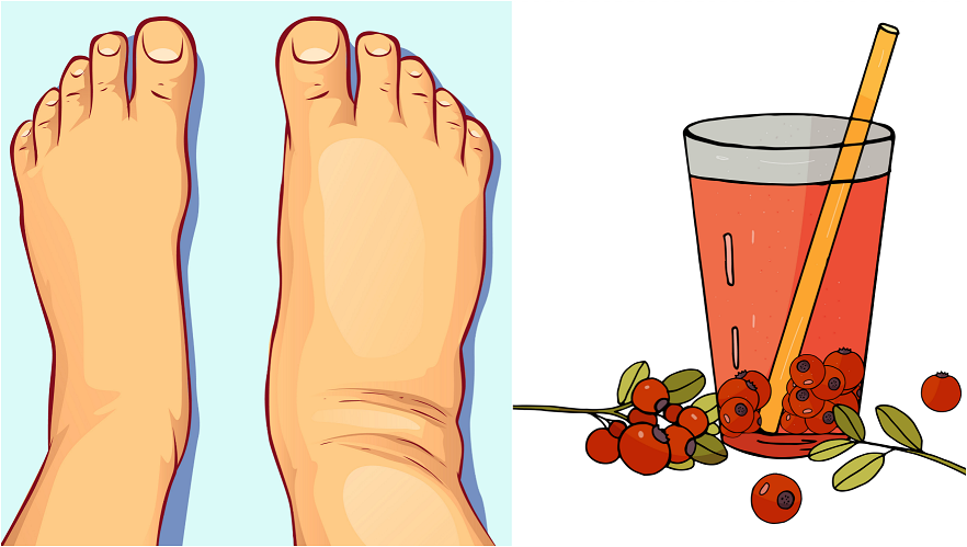 11 Home Remedies to Reduce Water Retention - Crafty Morning